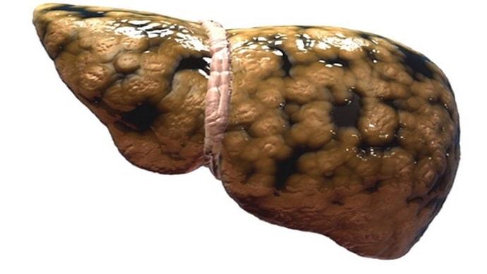 гепатомегалия диффузные изменения печени