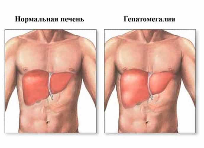 диффузные изменения печени по типу жирового гепатоза и гепатомегалия как симптомы состояния