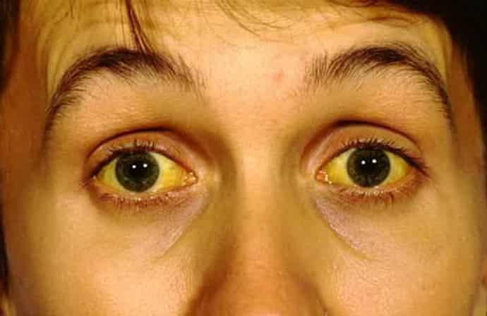 Лечение гемолитической желтухи