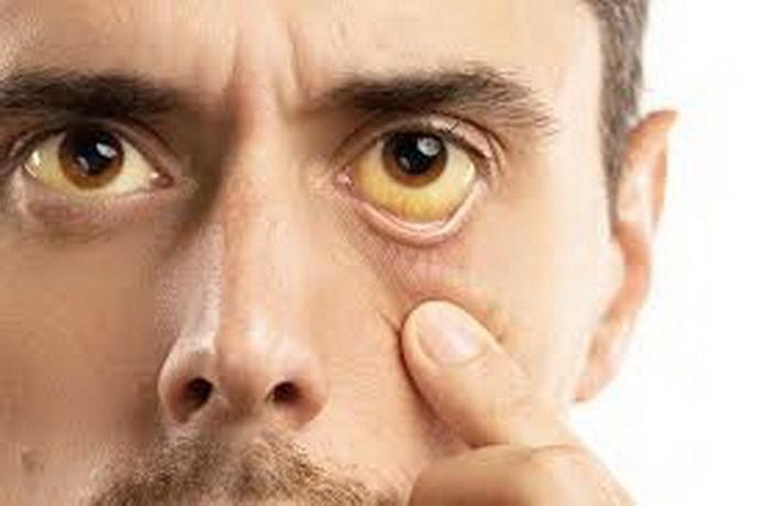 основные симптомы желтухи