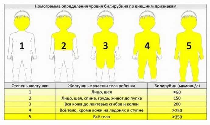 основные симптомы желтухи у детей