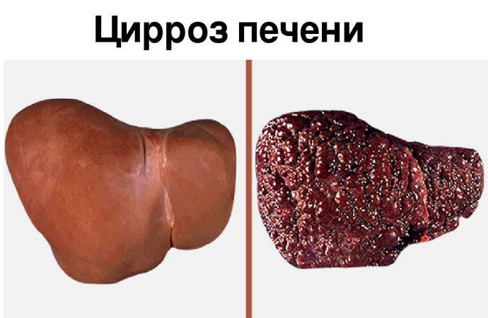 хофитол или урсофальк