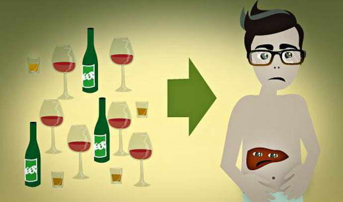 Осложнения холецистита на фоне приема алкоголя