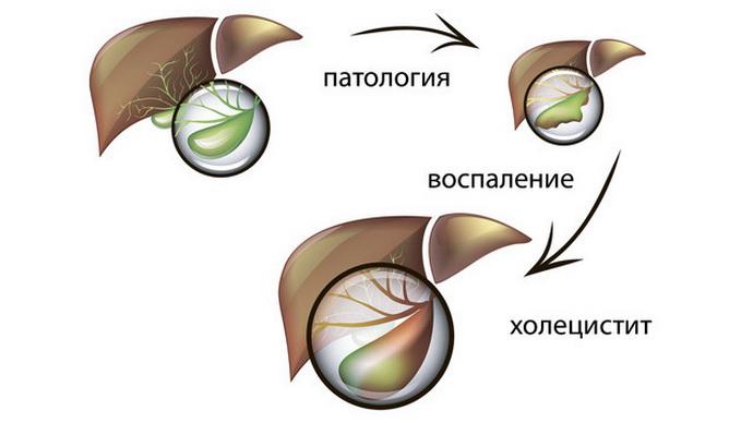 развитие холецистита у детей