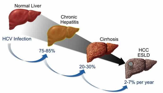 осложнения гепатита