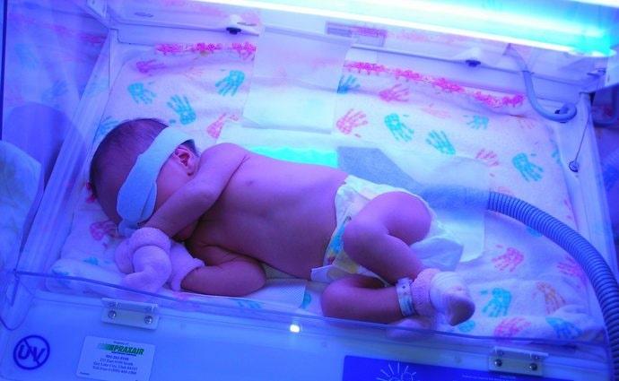 Очень важно во время процедуры фототерапии закрыть ребенку глаза и половые органы.