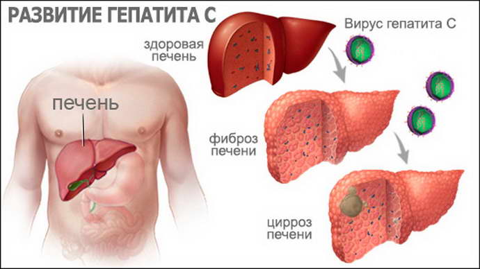 виды гепатита с