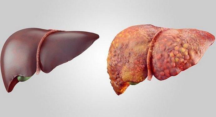 Цирроз это тяжелейшее поражение печени.