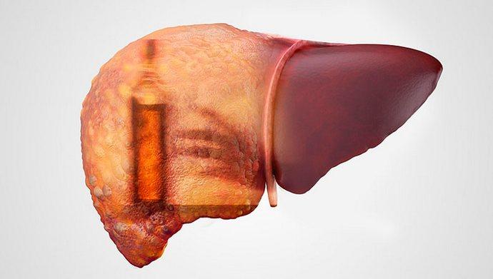 Часто острую форму приобретает токсический гепатит.