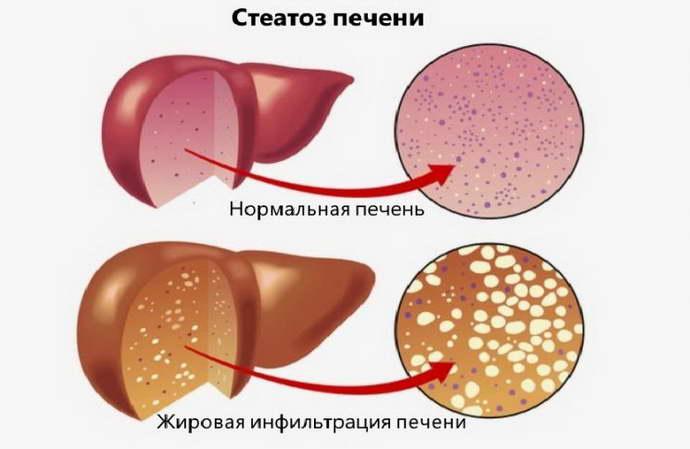 Развитие пневматоза