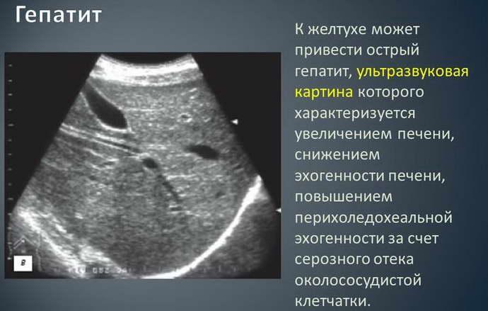 Распознавание гепатита на узи