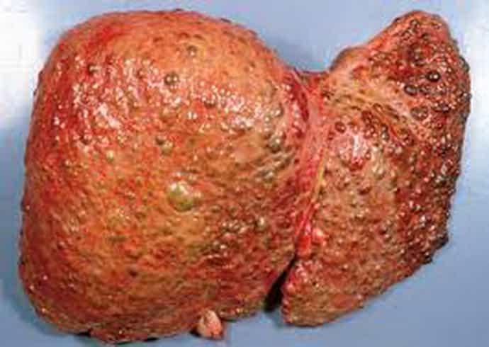 Отличия портального цирроза печени от других патологий