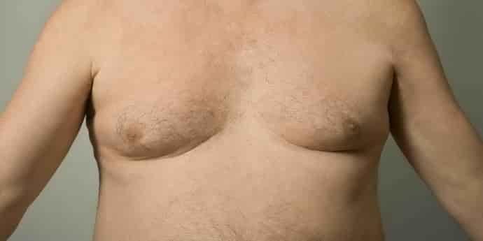 Распространенность портального цирроза печени объяснима