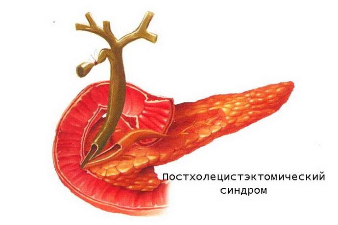 Появление постхолецистэктомического сндрома обычно вызвано операцией по удалению желчного пузыря