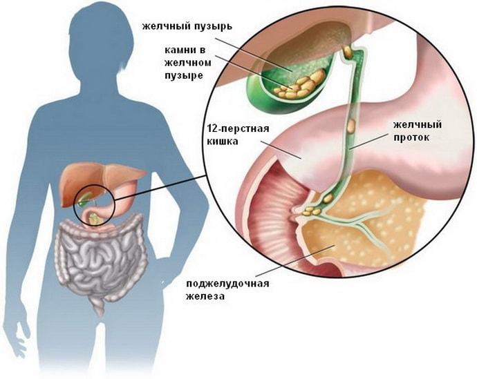 приступ желчнокаменной болезни симптомы