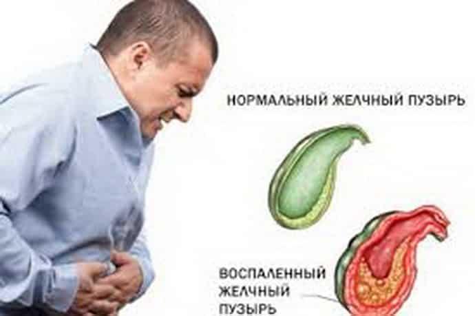 Причины увеличения желчного пузыря и лечение заболевания