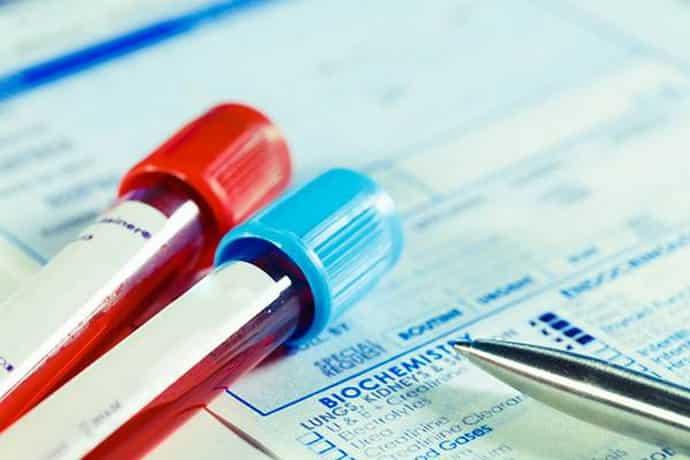 Вирусная нагрузка при гепатите С – концентрация вирусных РНК в крови.