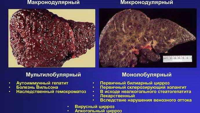 вирусный цирроз печен классификация
