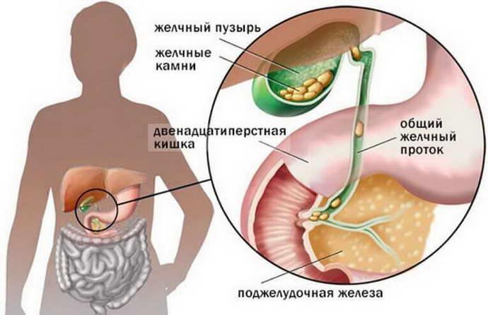 желчный пузырь и поджелудочная железа влияние