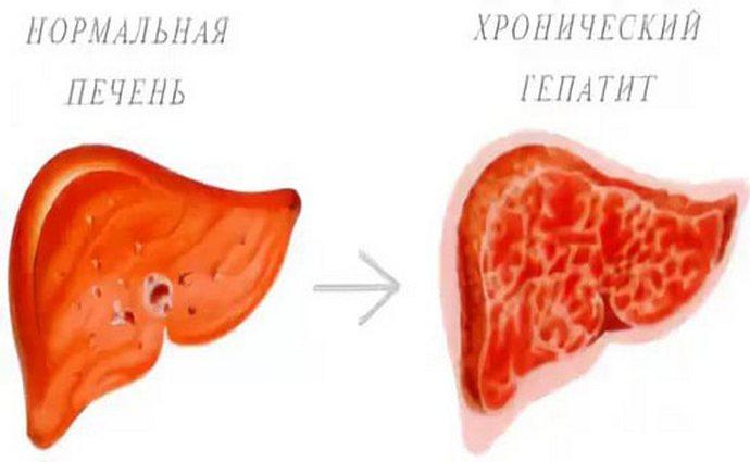 Хронический гепатит для скорейшего выздоровления требует не только лечения медикаментами, но и соблюдения правильной диеты.