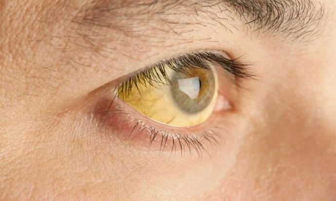 Холестатическая желтуха возникает при нарушении оттока желчи из печени.