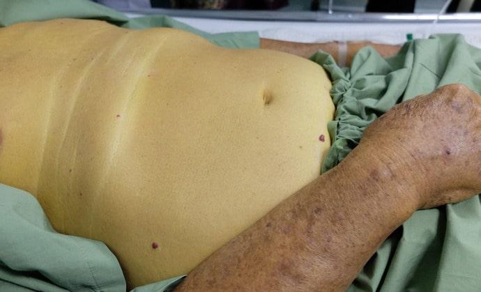 Такая желтуха может возникнуть при внутрипеченочном холестазе.