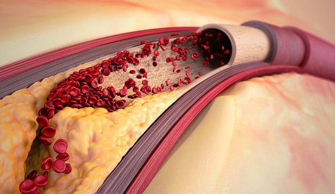 Статины это лекарства для снижения уровня холестерина.