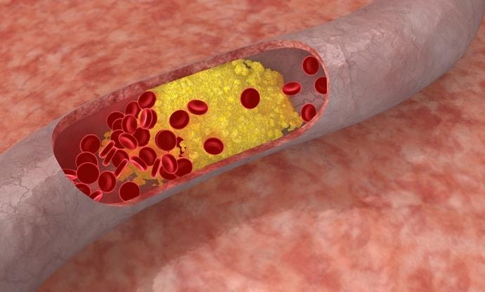 Взаимосвязь печени и холестерина ясна.