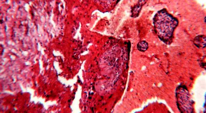 Кровь в стуле при циррозе thumbnail