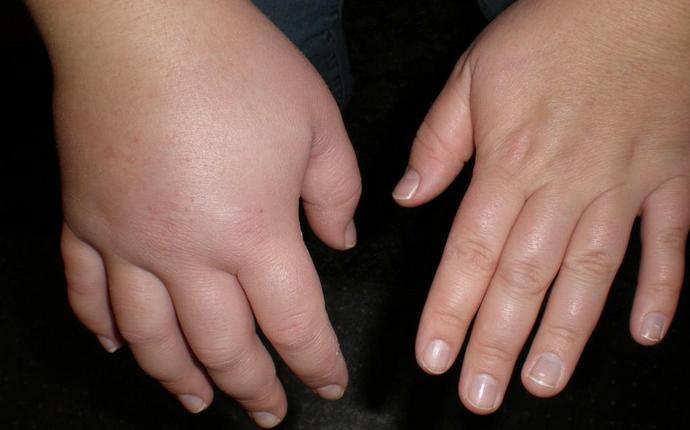 Печеночные отеки могут появиться на разных частях тела.