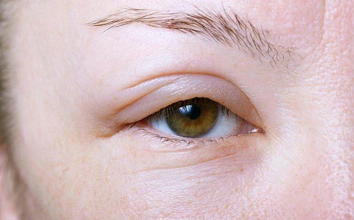 Характерным признаком проблем с печенью является так называемая одутловатость лица.