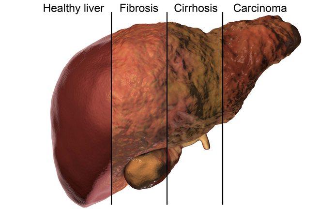 Если же начать лечение слишком поздно, возможно осложнение болезни вплоть до фиброза, цирроза и карциномы.