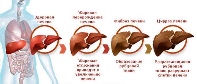 как передается цирроз печени