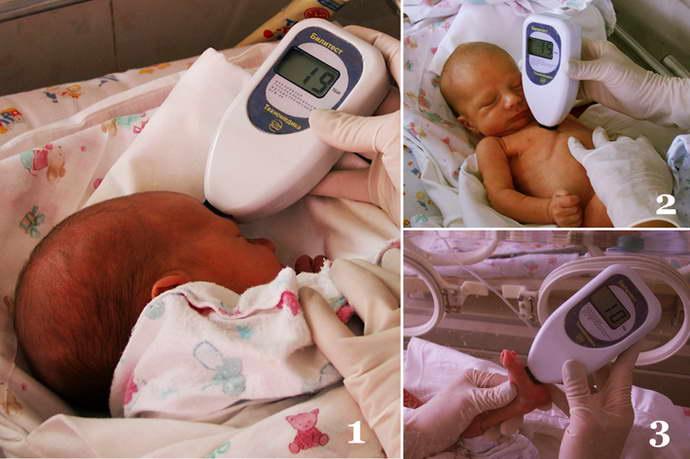 Нормальные значения билирубина у новорожденных