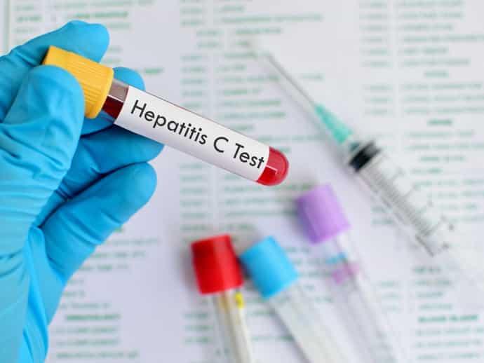 Ложноположительный результат анализа на гепатит С