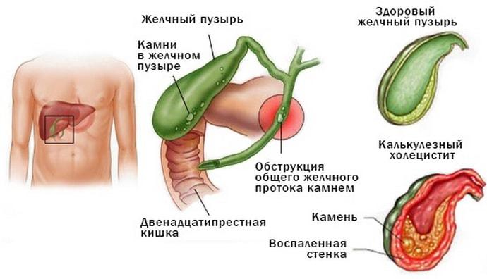 хронический холецистит: причины