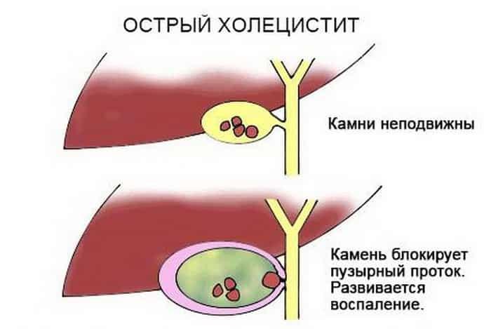острый холецистит: причины