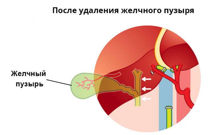 реабилитация после удаления желчного пузыря