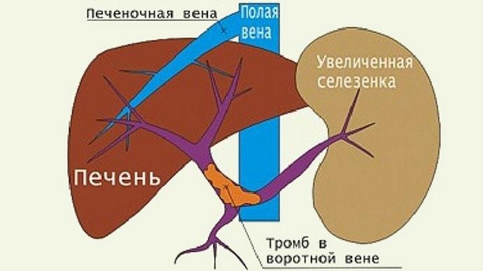 Тромбоз портальной вены не такое уж и редкое явление.