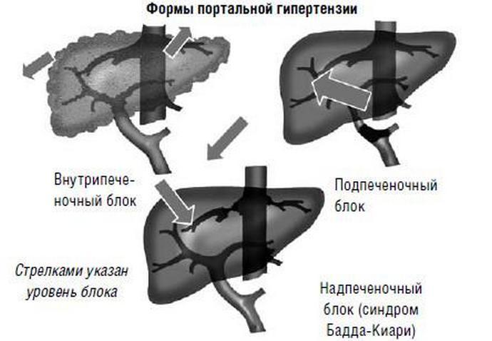 Портальная гипертензия может возникнуть, например, при циррозе.