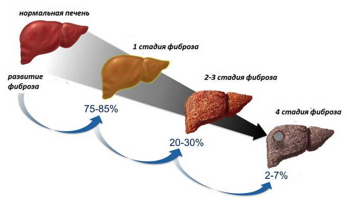 протоковые изменения в печени