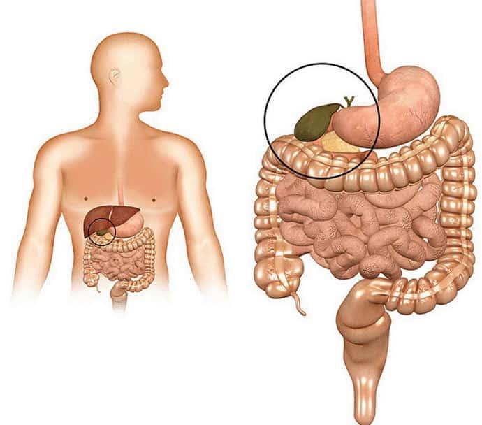 Причины и признаки внутрипеченочного холестаза